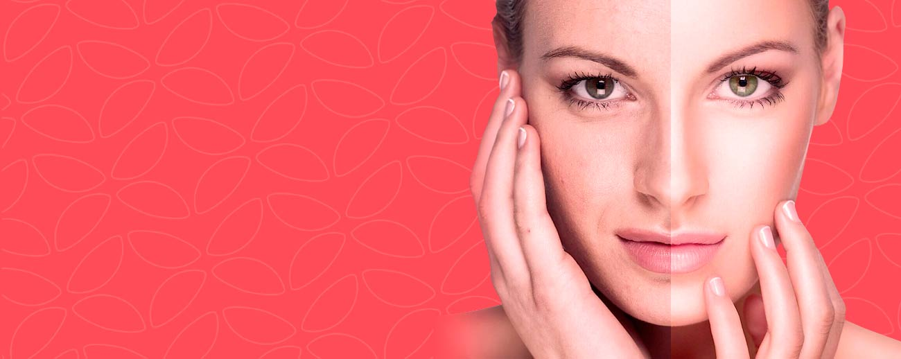 RF-ліфтінг плазмотерапія пілінг обличчя